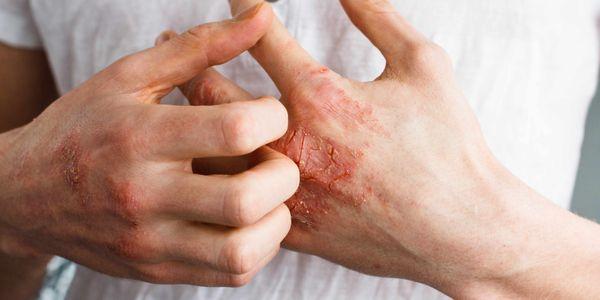 10 dicas de banho eczema para reduzir a coceira