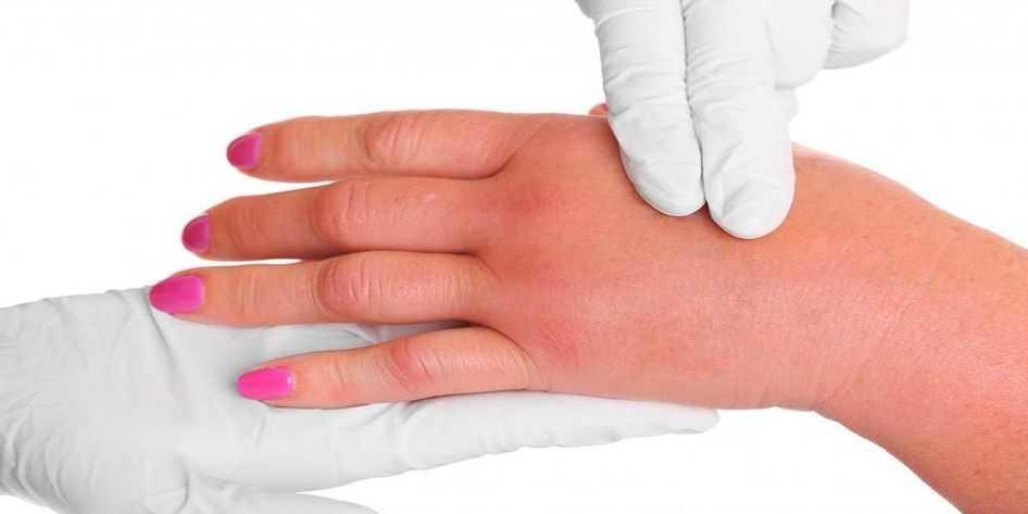 Braço Inchado e Inchaço da Mão, Antebraço, Dedos