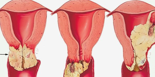 Câncer Vaginal