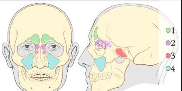 Cavidades Sinusais (Seios Paranasais) Localização, Anatomia