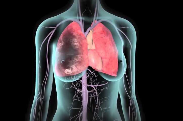 Coágulo de sangue no pulmão
