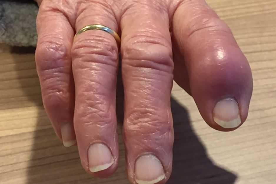 Dedo Inchaço