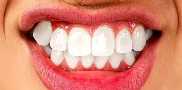 Dentes de moagem (bruxismo) e apertamento de mandíbula em adultos e crianças