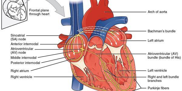 Dissociação Atrioventricular (Coração)