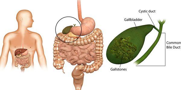 Dor na vesícula biliar e outros sintomas da doença da vesícula biliar