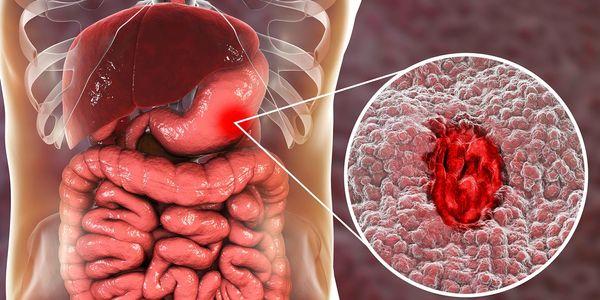 Estômago perfurado, causas da úlcera do intestino, sintomas, tratamento