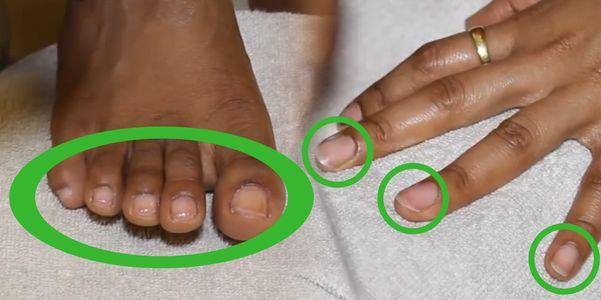 Partes da unha e fotos – dedo humano e dedo do pé