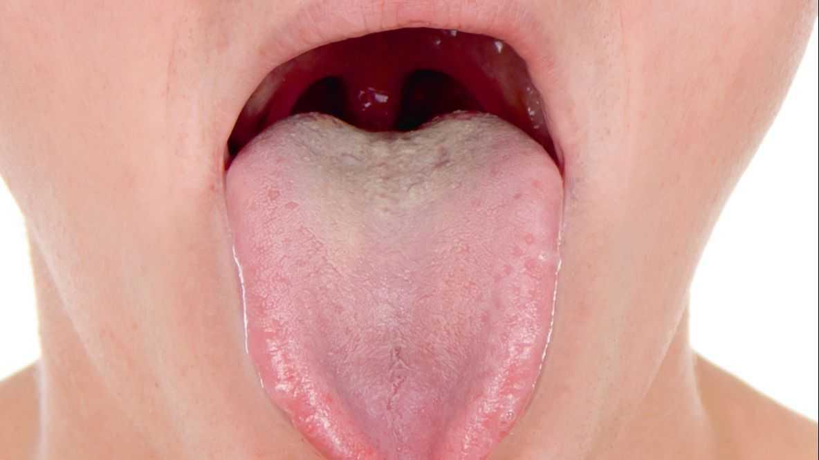 Refluxo Faringite