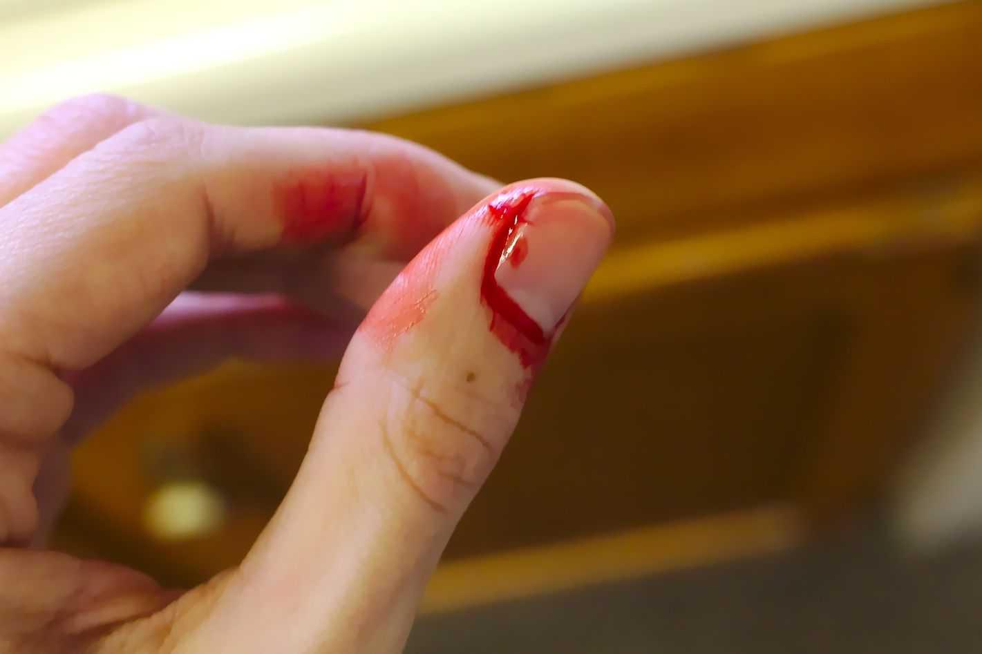 Sangramento vaginal em criança
