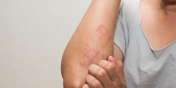 Teste de alergia: maneiras de descobrir se você é alérgico