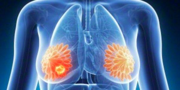 Tratamento avançado precoce do câncer de mama (cirurgia, quimioterapia)