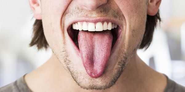 descoloração da língua-branco-vermelho-roxo-azul-amarelo-preto