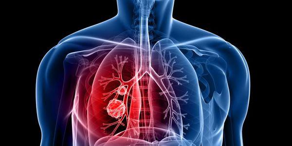 dicas de estilo de vida para a prevenção do câncer de pulmão