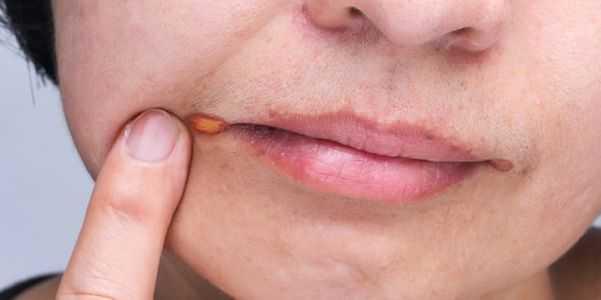 erupção-em torno da boca-lábios-causas-fotos-tratamento