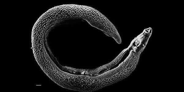esquistossomose-esquistossomose-sangue-fluidos-bilharzia-vermes