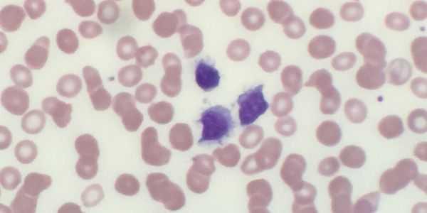 leucemia de células pilosas-hcl