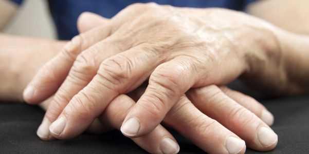 mão-artrite