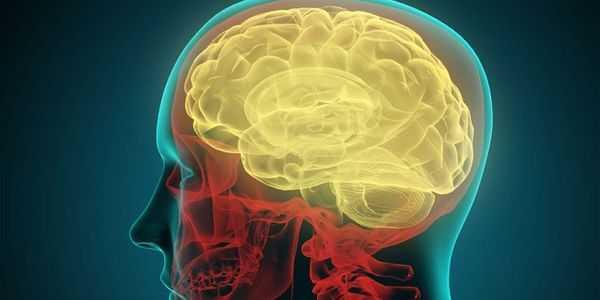 neurossarcoidose-sarcoidose-do-cérebro-e-nervos