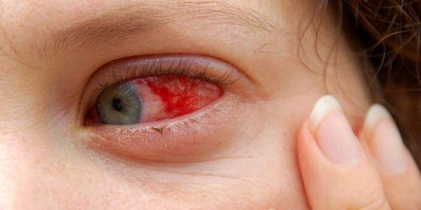 olhos-vermelhidão excessiva-olhos-vermelhos-causas-tratamento-prevenção