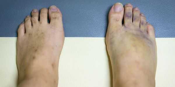 pernas pálidas-com-cor-azul-dor-dormência e formigamento