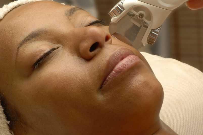 pigmentação da pele escura no rosto