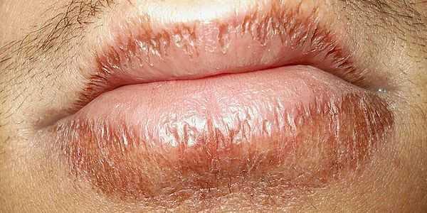 rachados-lábios-crack-áspero-doloridos-causas-e-remédios