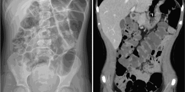 síndrome de ogilvie-aguda-colônica-pseudo-obstrução