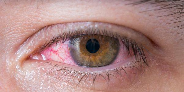 sinais-de-rosa-olho-conjuntivite-e-como-é-se espalhar