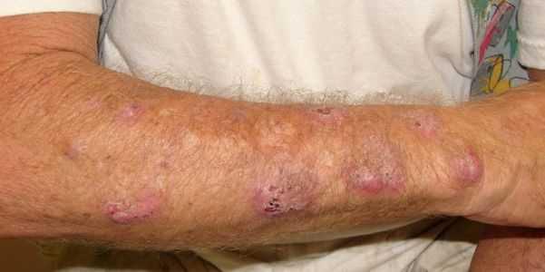 sporotrichosis-sporothrix-fungal-infecção-informação-e-fotos
