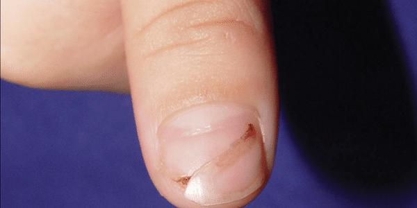 5 fungos que crescem em sua pele, cabelos e unhas