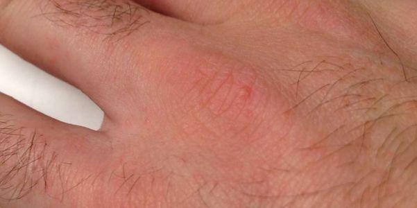 Alergias de Poeira Doméstica a Ácaros da Poeira, Baratas, Moldes, Pólen, Animais de Estimação
