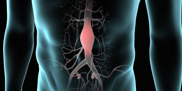Aneurisma da aorta (AA) – Tipos de aneurismas torácicos e abdominais