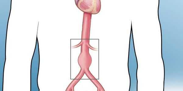 Aorta aumentada causa sintomas de um aneurisma da aorta