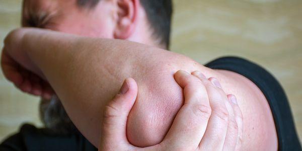 Artrite psoriática (inflamação nas articulações com psoríase) causas, sintomas, tratamento
