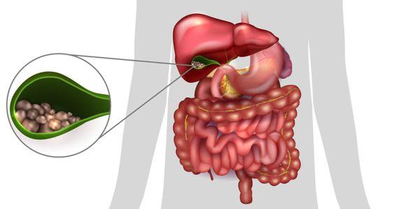 Cálculos biliares e remoção da vesícula biliar e cirurgia
