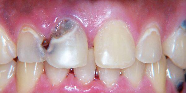 Cárie dentária (dentes cavidades) causa dor de dente e mandíbula