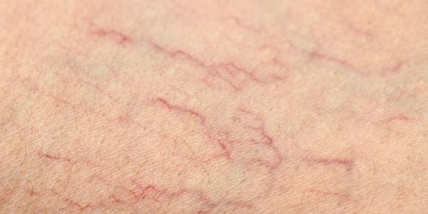 Calcipilaxia (vasos sanguíneos calcificados da pele)