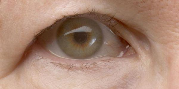 Causas de olhos caídos e ptose