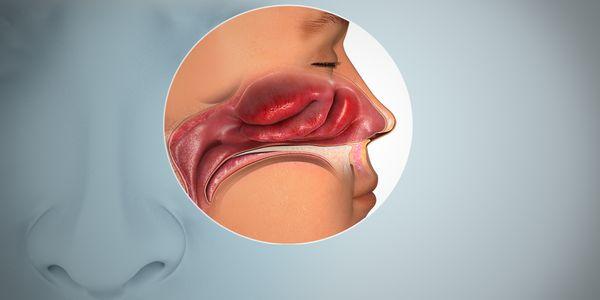 Causas e Tratamento de Anosmia (Perda do Sentido do Olfato)