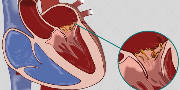 Causas e sintomas da endocardite (infecciosa e não infecciosa)
