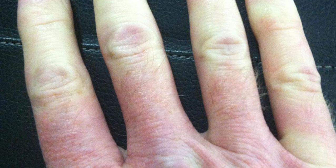Causas e sintomas de mãos e dedos azuis