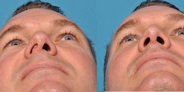 Causas, sintomas e cirurgia do septo desviado (nariz)