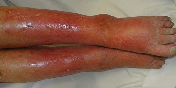 Celulite (Infecção), Imagens e Prevenção de Celulite