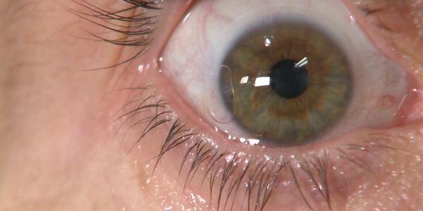 Ceratite (Inflamada, Córnea Infectada) Causas, Sintomas, Tratamento
