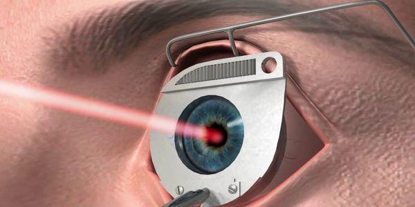 Cirurgia corretiva a laser