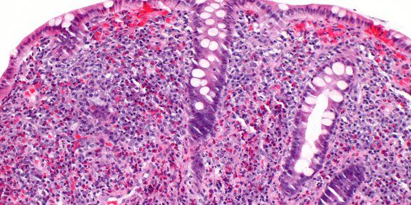 Colite eosinofílica