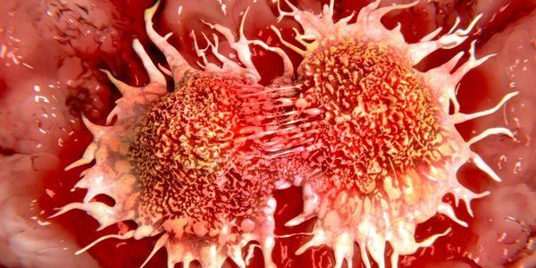 Como o câncer se espalha (metástase) para outras partes do corpo