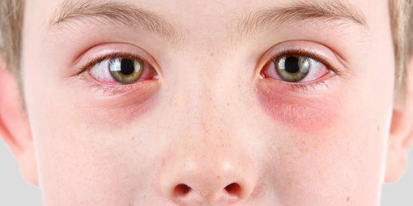 Como prevenir a conjuntivite em adultos e crianças