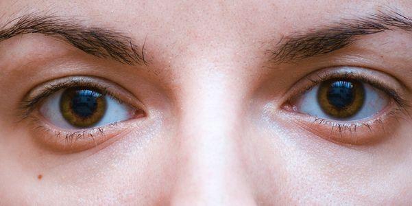 Como tratar olhos sonolentos com remédios simples