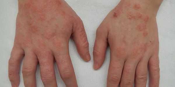 Corticosteróides esteroides para alergias